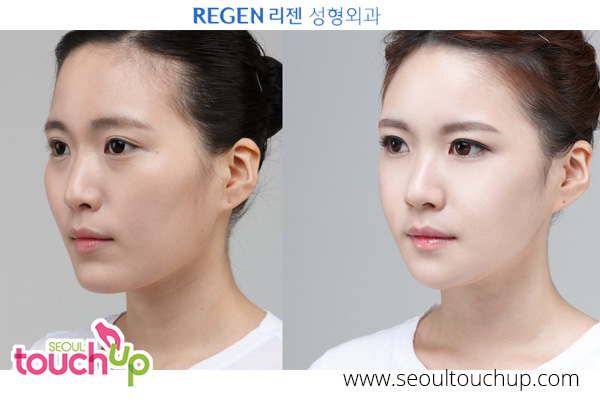 nose-lift-before-after