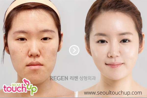 advanced-face-contouring--regen--main