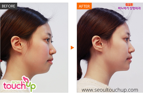 face-augmentation-surgery-before-after3