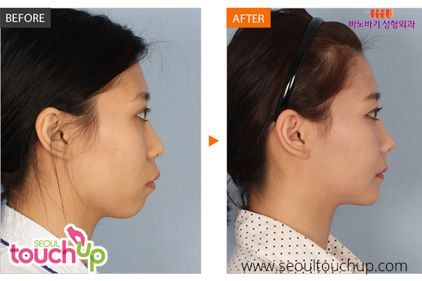 face-augmentation-surgery-before-after4