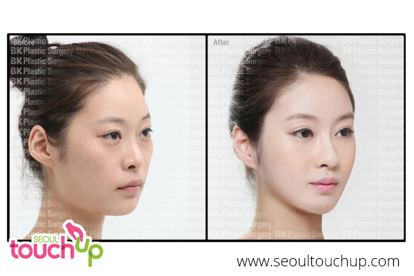 face-reduction-before-after