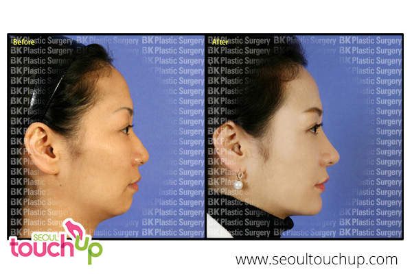 face-augmentation-surgery-before-after5