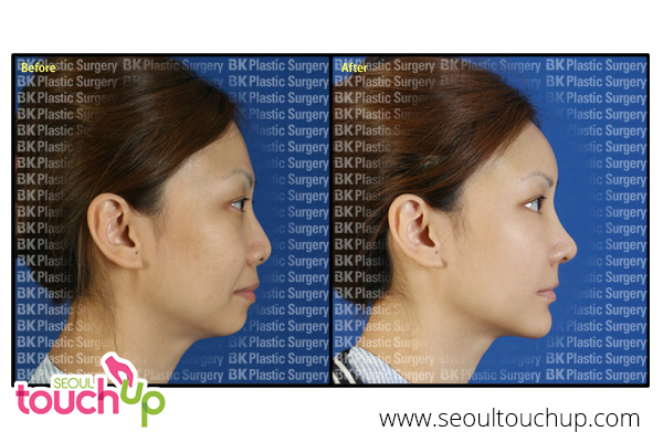 face-augmentation-surgery-before-after1