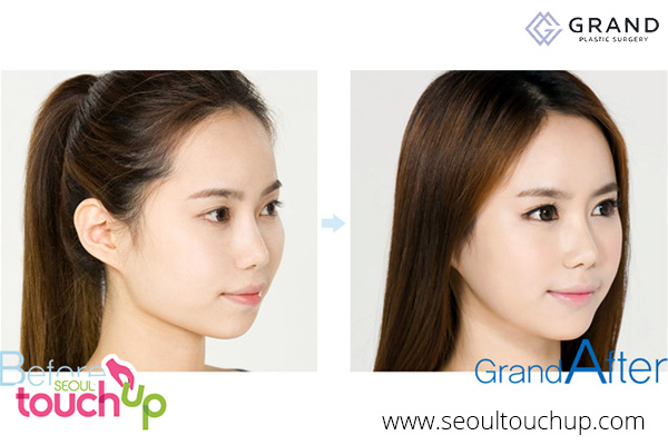Advanced Face Contouring Surgery | Seoul TouchUp
