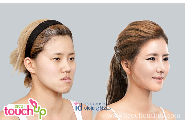 Korean Natural Beauty No Surgery
