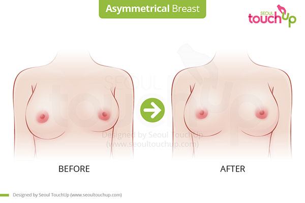 Breast_Asymmetrical