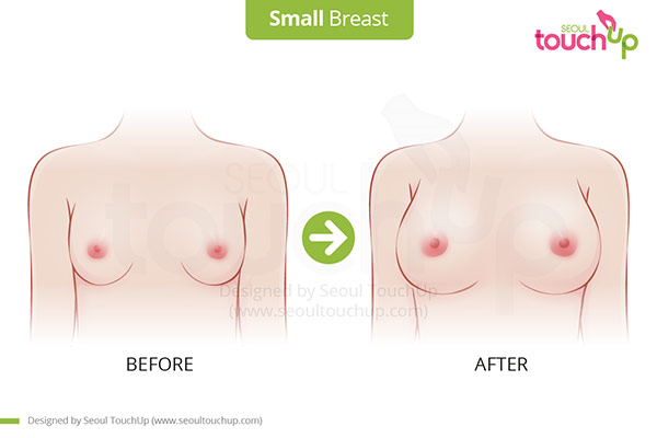 Breast_Small