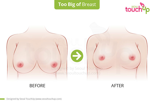 Breast_Too_Big