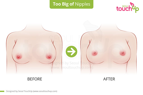 Breast_Too_Big_Nipples