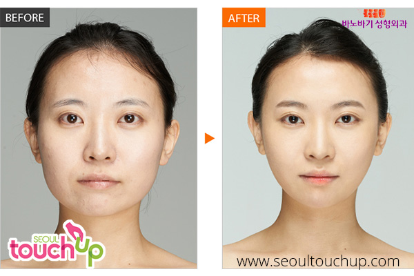 advanced-face-contouring-surgery-before-after1