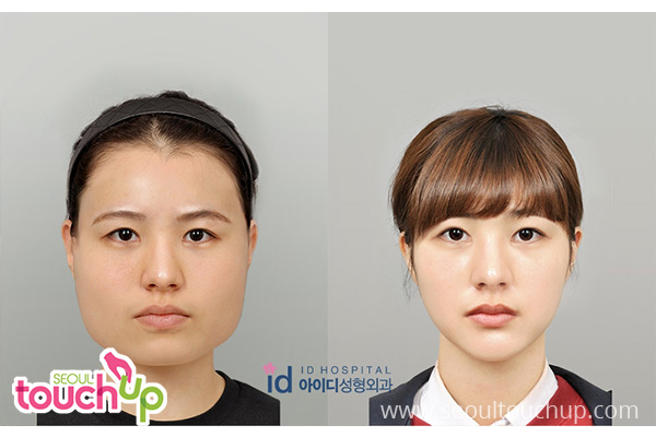 advanced-face-contouring-surgery-before-after10