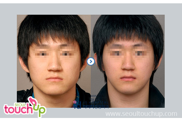 advanced-face-contouring-surgery-before-after11