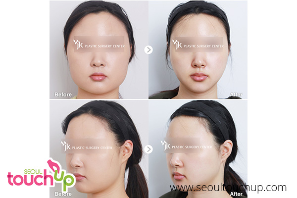 advanced-face-contouring-surgery-before-after12