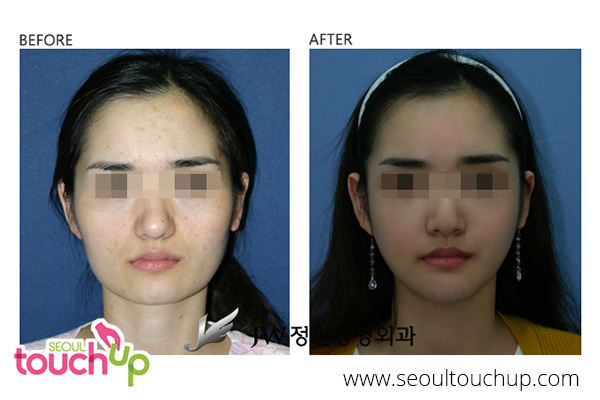 advanced-face-contouring-surgery-before-after13