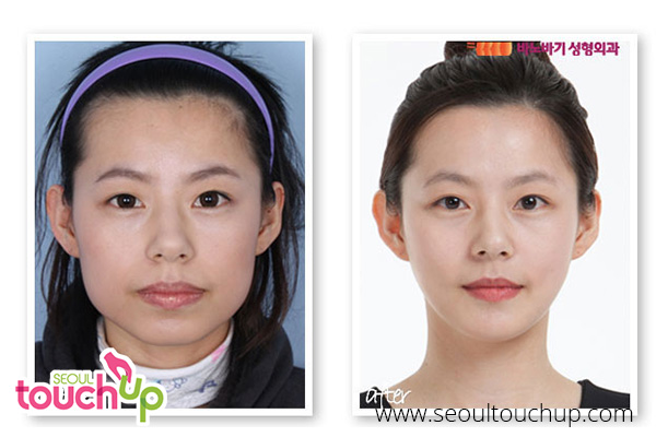 advanced-face-contouring-surgery-before-after2