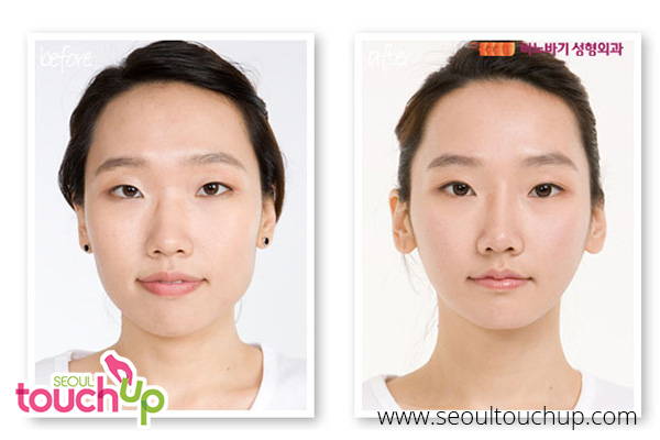 advanced-face-contouring-surgery-before-after3
