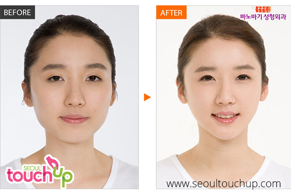 advanced-face-contouring-surgery-before-after4