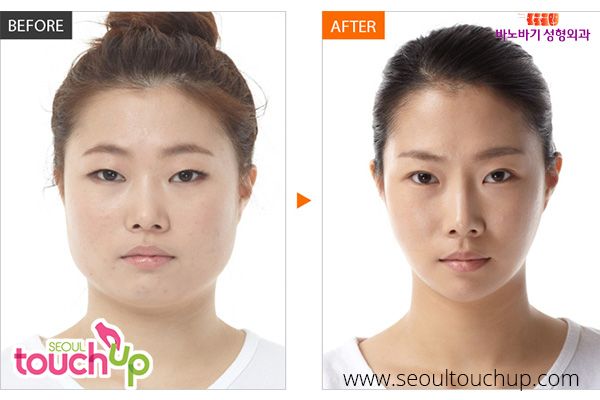 advanced-face-contouring-surgery-before-after5