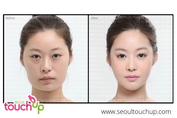 advanced-face-contouring-surgery-before-after6