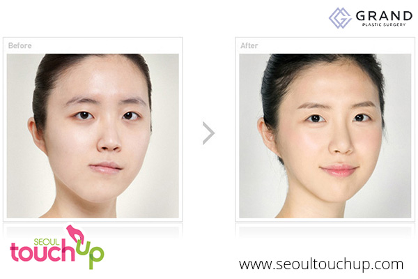 advanced-face-contouring-surgery-before-after8