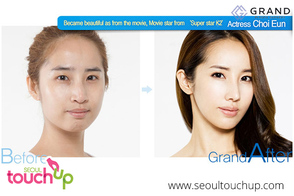 advanced-face-contouring-surgery-before-after9