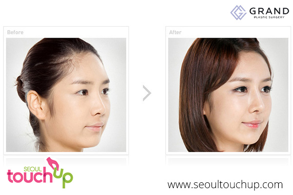 Advanced Face Contouring Surgery Before And After - Seoul
