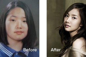 park-min-young-plastic-surgery-before-after.jpg
