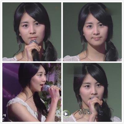 seohyun-before-surgery-less-puffy-face1-1.jpg