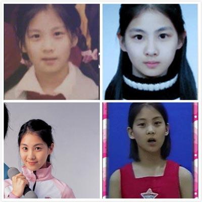 Seohyun From Girls Generation Had Nose Job Botox Fat Grafting