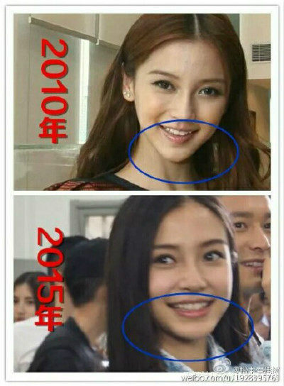 Is It Possible Angelababy Changed So Much Without Plastic