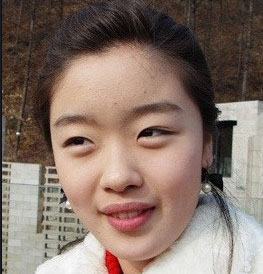 Han-Sun-hwa-plastic-surgery-before-after4.jpg