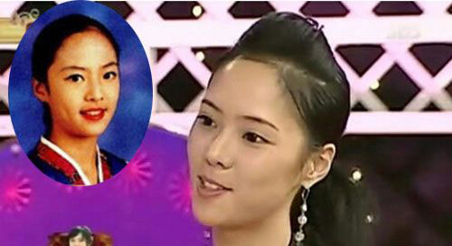 hwang-jung-eum-plastic-surgery-before-after2.jpg