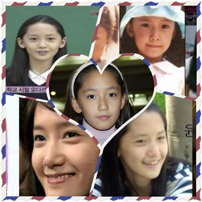 snsd-yoona-before-plastic-surgery1.jpg