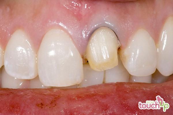 All Ceramic Crowns Dental Best Cometic Dental Surgery
