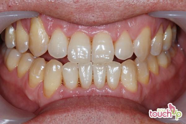 Laser Teeth Whitening Procedure Best Dental Clinics In
