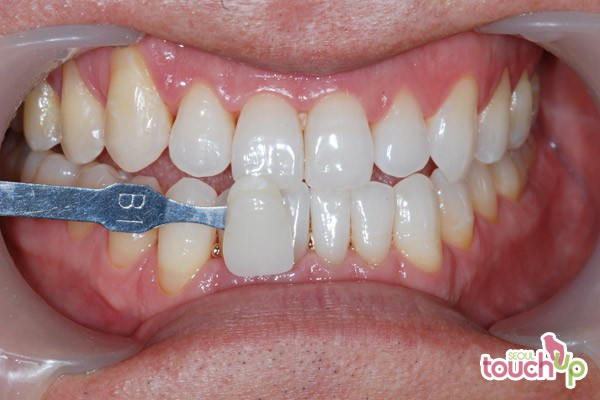 Laser Teeth Whitening Procedure Best Dental Clinics In