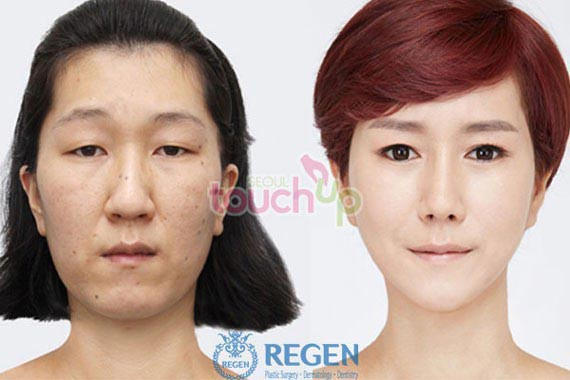 Asian Plastic Surgery Before After