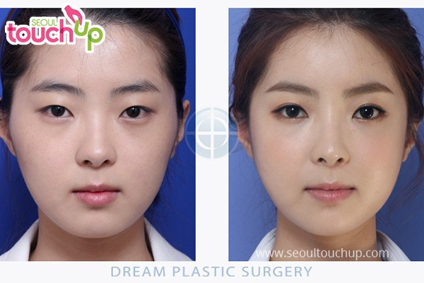 Eyelid Surgery in Korea | Seoul TouchUp