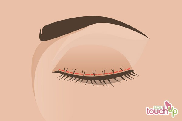 Double Eyelid Surgery in Korea | Seoul TouchUp