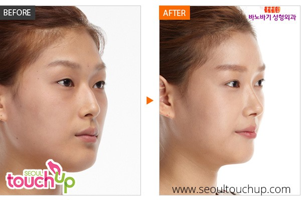 Korean Rhinoplasty (Nose Surgery)