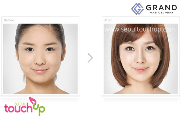 Korean Rhinoplasty Nose Surgery