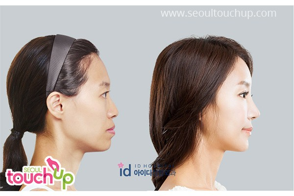 Korean Rhinoplasty (Nose Surgery)