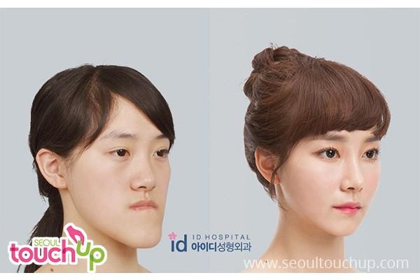 Face Contouring Surgery in Korea | Seoul TouchUp