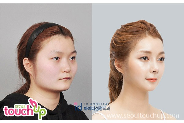 Face Contouring Surgery In Korea Seoul Touchup