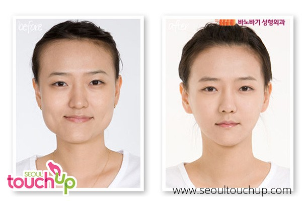 Face Contouring Surgery in Korea | Seoul TouchUp